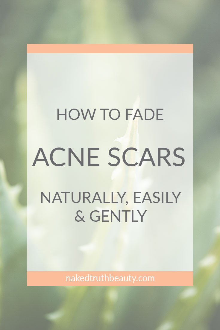 How to Fade Acne Scars Naturally, Easily, and Gently