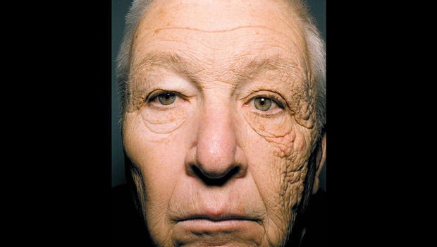 How to Choose a Good Sunscreen, 28 years of truck driving skin damage